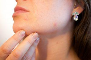 holistic acne treatment